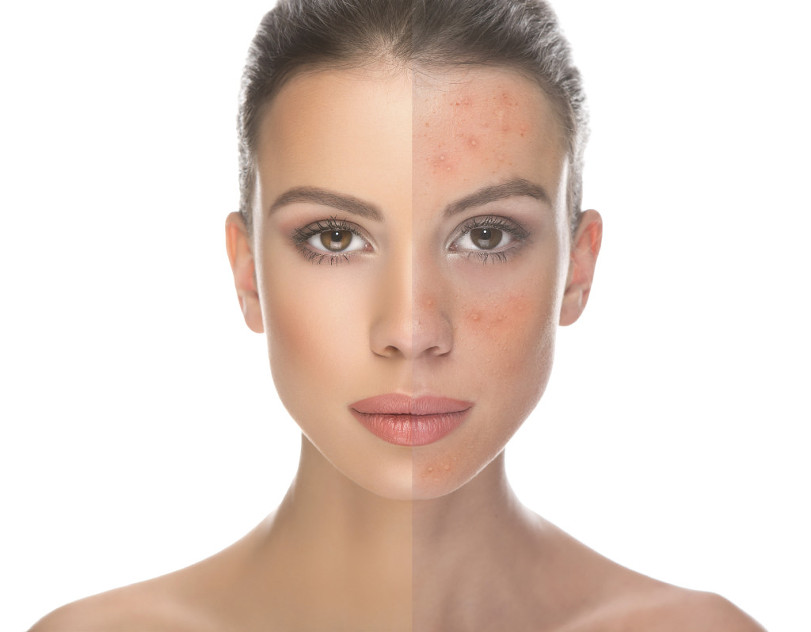 acne-rosacea-beauty-salons-perth